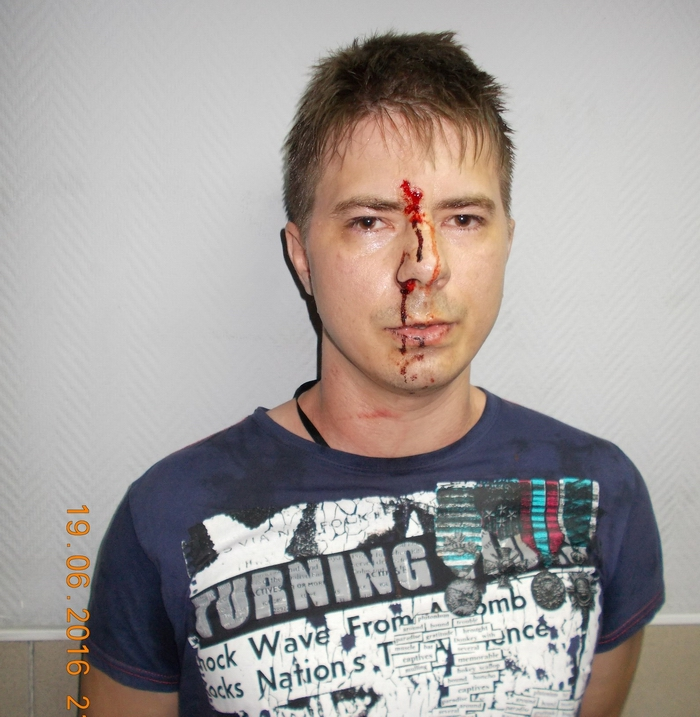 Opposition activist Stanislav Kalinichenko after his alleged beating by police in Kemerovo. Courtesy of his blog